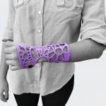 Fix itStartup usa impressão 3D para produzir órteses personalizadas se prepara para expandir negócio